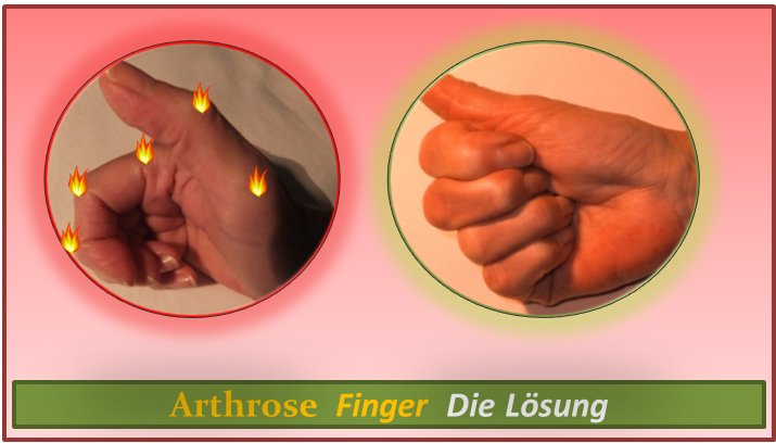 Arthrose Finger