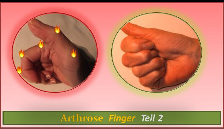 Arthrose Finger